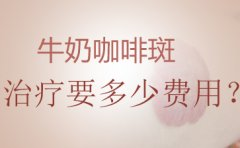 广州去除咖啡斑医院:咖啡斑一定要治疗吗