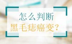 广州黑毛痣医院哪里好?黑毛痣癌变是真的吗