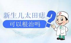 广州去除太田痣医院:太田痣的形成原因是什么